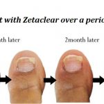 The Most Effective Toenail Fungus Cures
